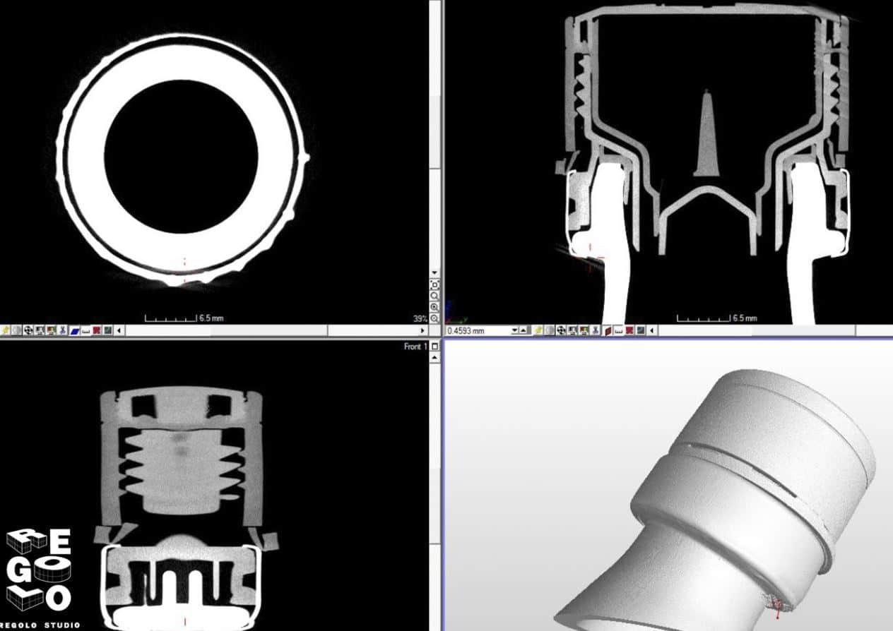 Tomografia assiale computerizzata di un tappo